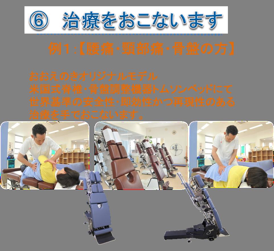 例1:【腰痛・頸部痛・骨盤の方】おおえのきオリジナルモデル 米国式脊椎・骨盤調整機器トムソンベッドにて 世界基準の安全性・即効性かつ再現性のある 治療を手でおこないます。