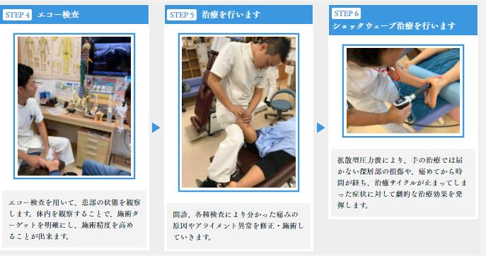 STEP4エコー検査 STEP5治療 STEP6ショックウェーブ治療