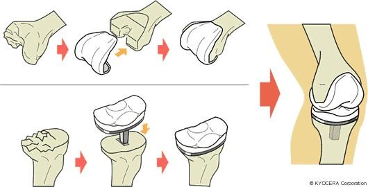 膝人工関節置換術